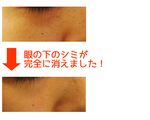 神戸三宮 びとう皮膚科クリニック,シミを取る,シミを消す,レーザー治療,「Qスイッチアレックス」