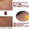 神戸「Qスイッチ レーザーシミ取り」レポート②「びとう皮膚科」クリニックで、女子力アップ!