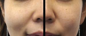 リファクリア 口コミ,リファクリア 最安値,リファクリア 敏感肌,リファクリア 楽天,りふぁくりあ,リファ 洗顔,リファクリア 効果,リファクリア 洗顔ブラシ