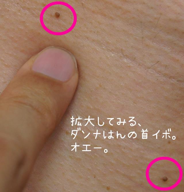 クリアポロンを使う前の首イボの拡大図 srcset=