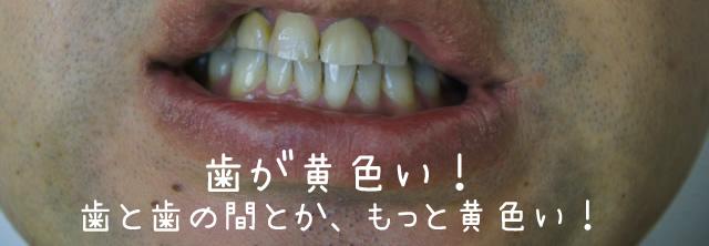 プレミアムブラントゥースを使う前の40代男性の歯の黄ばみ