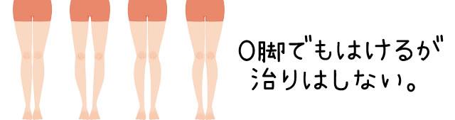 エクスレッグスリマー 入浴,エクスレッグスリマー 足首,エクスレッグスリマー おしり,エクスレッグスリマー お腹,エクスレッグスリマー o脚,エクスレッグスリマー 筋肉痛