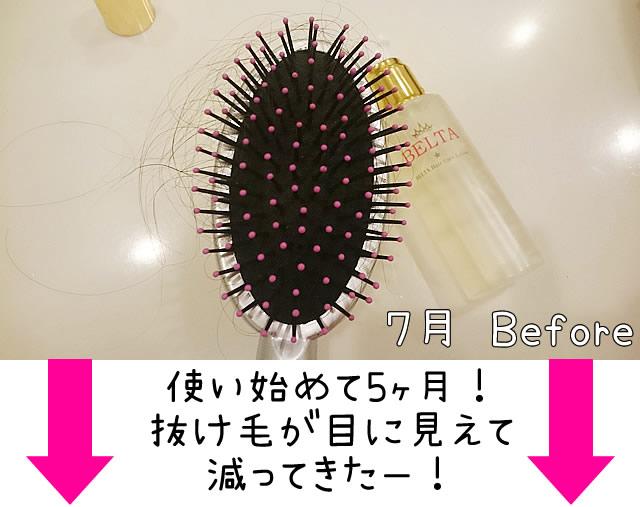 ベルタ育毛剤 効果 口コミ,ベルタ育毛剤 効果 画像,ベルタ育毛剤 抜け毛 増えた