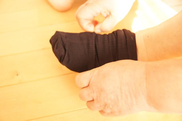 下肢静脈瘤 むくみ 違い,下肢静脈瘤 むくみ 改善,下肢静脈瘤 むくみは自分で治せる