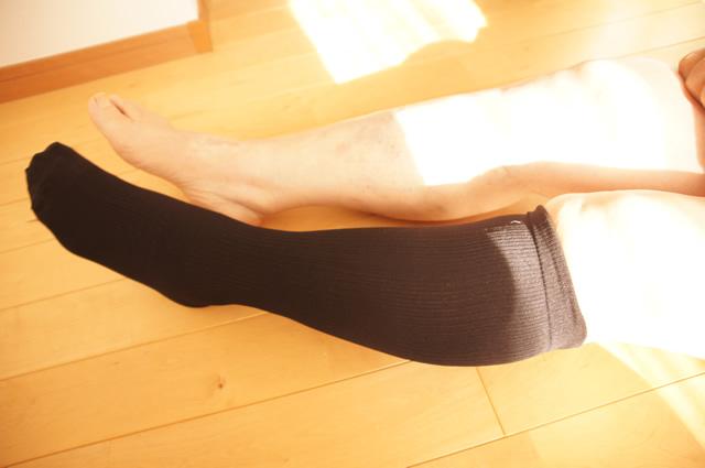 下肢静脈瘤 デスクワーク,下肢静脈瘤 できやすい人,下肢静脈瘤 60代