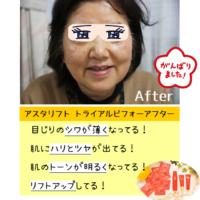 ケチると効果なし!アスタリフトの使い方、使用量の目安を詳しく解説!