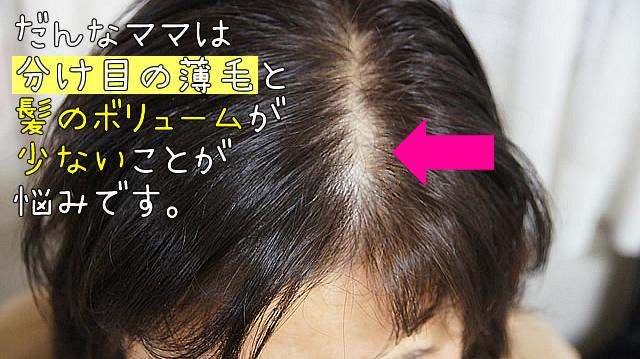 つむじ薄毛 対策,つむじ薄毛 髪型,つむじ薄毛 女性,つむじ薄毛 原因,