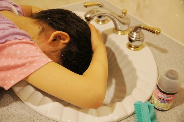 アタマジラミ 卵駆除,アタマジラミ 駆除 子供,アタマジラミ 子供 シャンプー,アタマジラミ 治療 子供,アタマジラミ 予防シャンプー