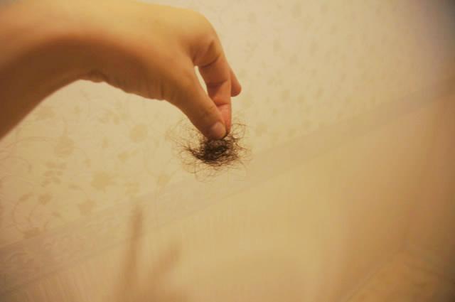 ベルタ育毛剤 40代,ベルタ育毛剤 効果ない,ベルタ育毛剤 効果なし,ベルタ育毛剤 悪化