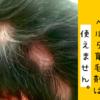 円形脱毛症にベルタ育毛剤を使うな!ハゲに効果がない理由は?