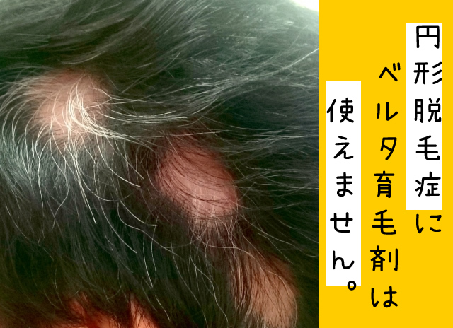 ベルタ育毛剤 円形,ベルタ育毛剤 円形脱毛,ベルタ育毛剤 円形脱毛症,ベルタ育毛剤 ダメ