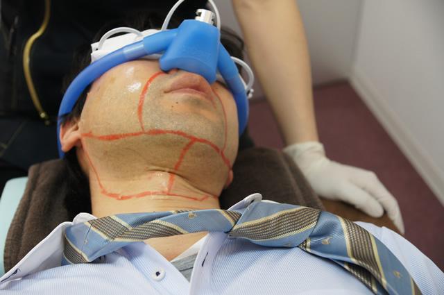 ゴリラクリニック 笑気麻酔,ゴリラクリニック 痛い,ゴリラクリニック ヒゲ 痛い