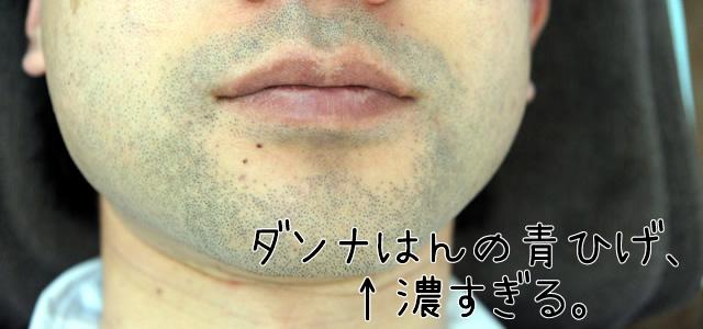 ゴリラクリニック 3回,ゴリラクリニック ヤグレーザー,ゴリラクリニック 青ひげ