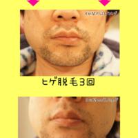 神戸の髭脱毛は「ゴリラクリニック」ヤグレーザー 4回目のポロ期レポ。