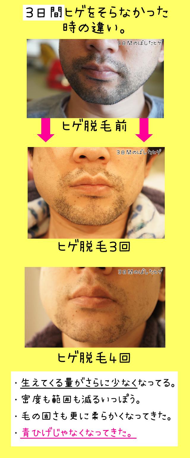 神戸 髭脱毛 クリニック,ヤグレーザー ブログ,男性 ひげ脱毛 神戸,