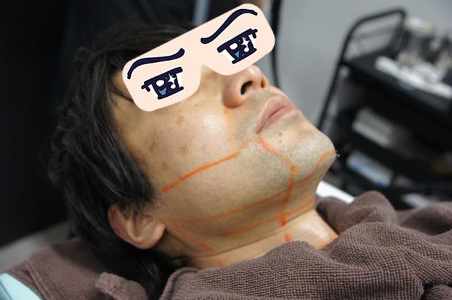 ゴリラクリニック 青ひげ,ゴリラクリニック ヒゲ脱毛レポート,