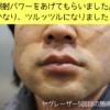 ゴリラクリニック神戸三宮の看護師が美人で最高!ヤグレーザー5回目の口コミ。