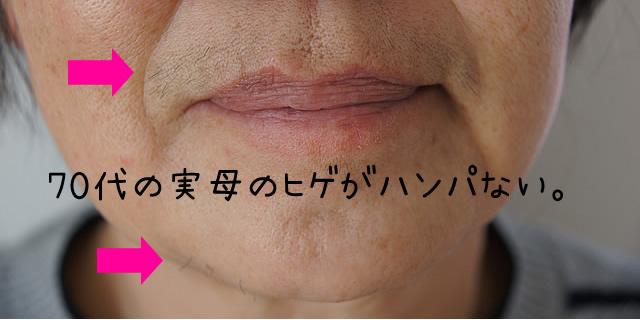 女性 ひげ ノイス,女性 ヒゲ ノイス,女性のひげ ノイス
