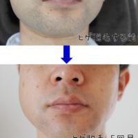 ゴリラ脱毛体験談。神戸の髭脱毛はゴリラクリニック!5回目のポロ期レポ。