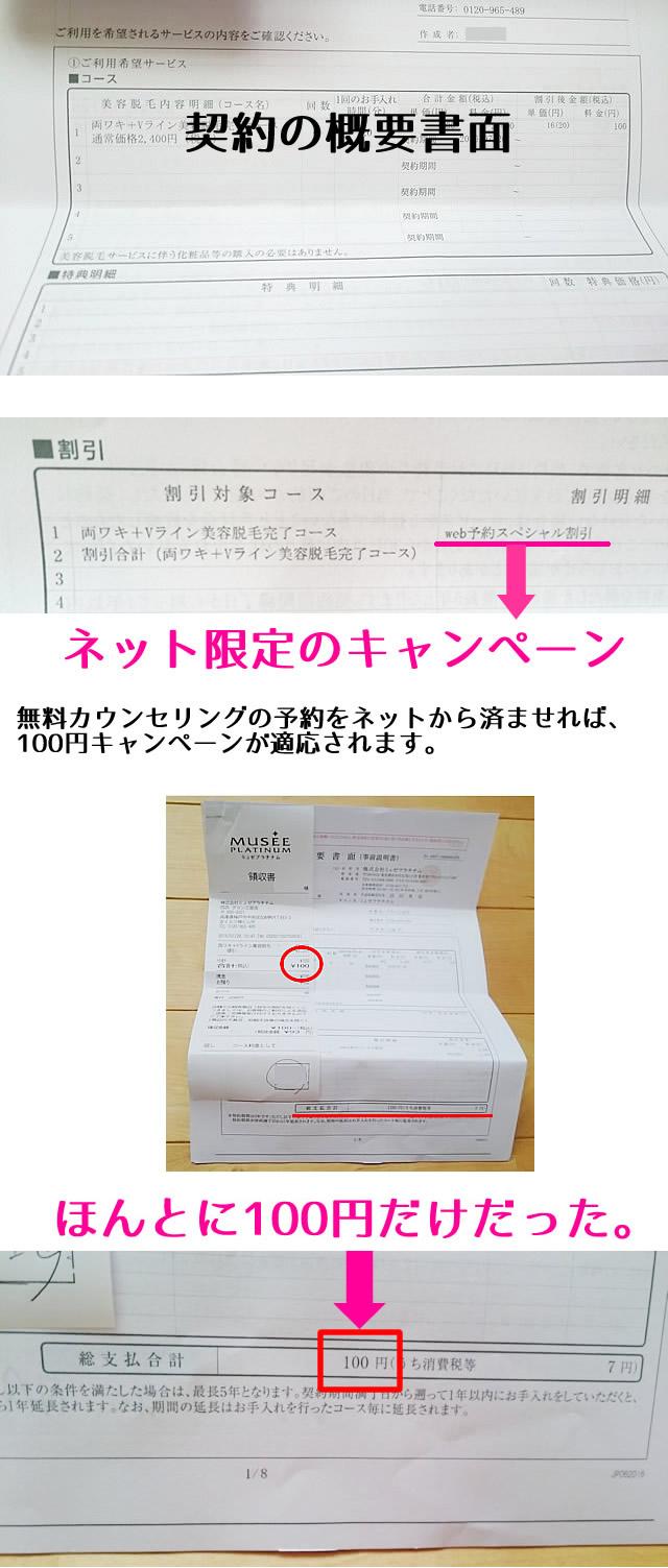 ミュゼの100円キャンペーン契約書