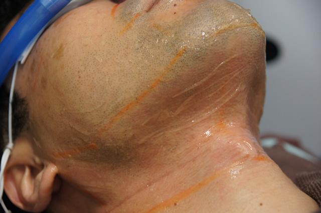 ゴリラクリニック 痛い,ゴリラクリニック 炎症
