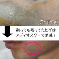 神戸 ゴリラクリニックは美人しかいない!ヒゲ脱毛 8回目の口コミ。