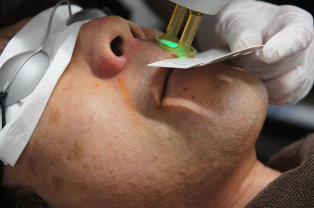 ゴリラクリニック 鼻下